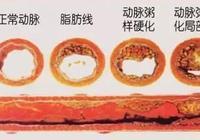 你的血管從16歲起就悄悄長斑,40歲最危險!簡單4招能清理