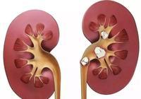 腎結石怎麼吃能夠快速溶石?限鈣飲食竟是誤區!