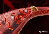 李鐵紅:腦靜脈血栓的5大預兆