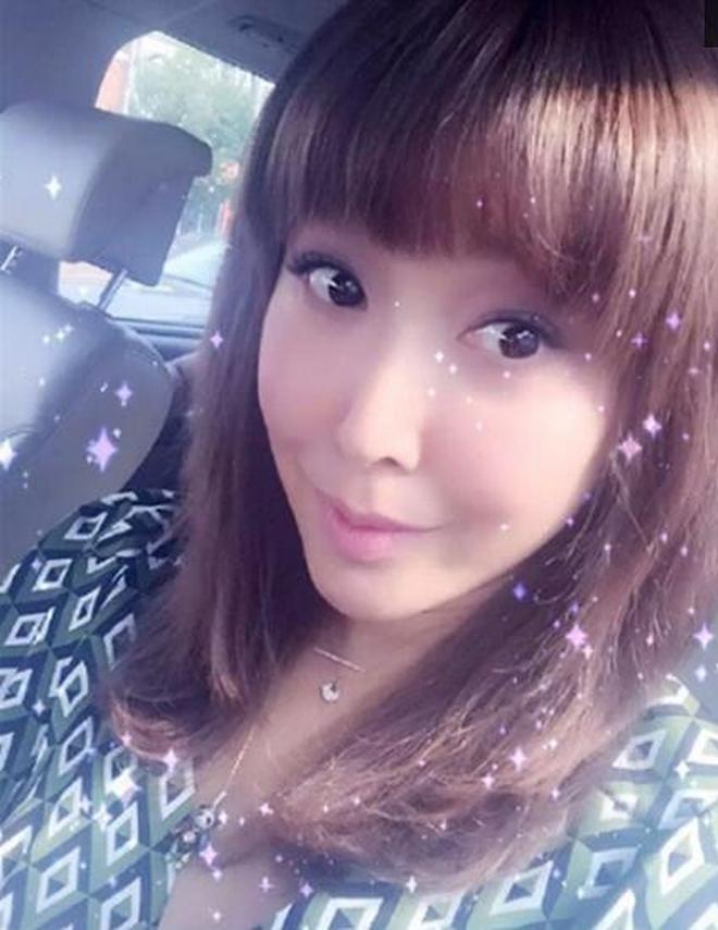 45歲歌手孫悅近照,因《祝你平安》一夜爆紅,今整容過度不敢認