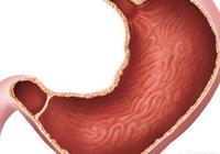 胃潰瘍吃什麼養胃?
