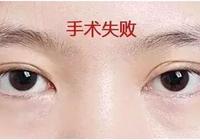 雙眼皮修復手術半年後再做,為啥?