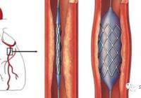 科學家展示可生物降解的自擴展 3D 打印支架,用於小兒心臟手術