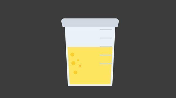尿液很黃、異味大?專家:可能是身體在向你發出這4種警告!