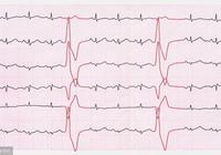 發現早搏就是得了心臟病嗎?