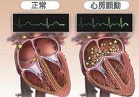 房顫是個什麼心臟病?還能引起腦中風嗎?