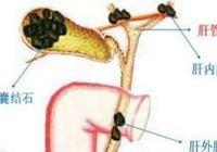 膽結石吃什麼藥好,中醫介紹膽結石的用藥