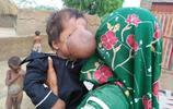 """臉上長了個""""板球"""" 巴基斯坦嬰兒患怪病鼻子腫大如球"""