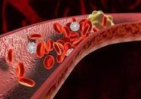健康小知識:40歲後要多吃,清理血管垃圾的6大特效菜