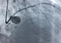心臟造影檢查後超過75%的需要做支架嗎?