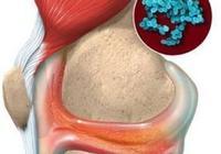 化膿性關節炎的病理分期