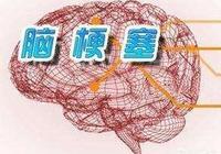 大面積腦梗,無後遺症,該怎麼預防復發?