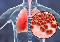 如何把寶寶肺炎掐死在萌芽階段,這幾招很重要!