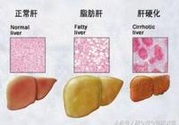 脂肪肝不是胖子的專利,常見的脂肪肝誤區