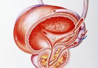 前列腺炎與尿道炎有什麼區別?如何才能避免這兩種病?
