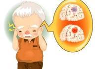 吃洋蔥、芹菜能預防腦梗?醫生提醒:做好這4件事,腦梗與你無緣