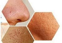 郭鴻財:皮膚毛孔粗大,影響著臉部的美觀,這個該怎麼改善呢?
