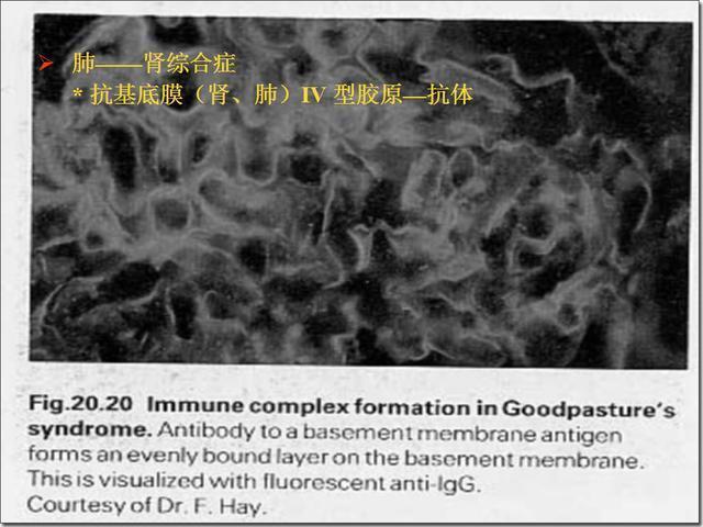 圖解自身免疫性疾病