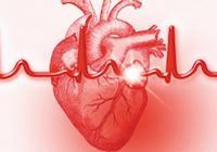 什麼是心肌梗死