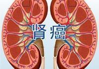 腎癌的預防方法都是什麼