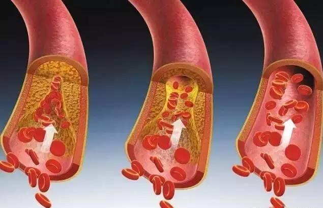血管垃圾是什麼?怎麼清理血管?