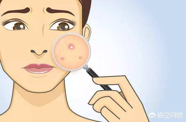 怎麼可以去臉上的痘印,用過祛痘產品,不是特別的明顯效果。是擦什麼效果好嗎?