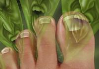 五年腳氣揮之不去,初夏一常見植物,除腳氣就趁現在!