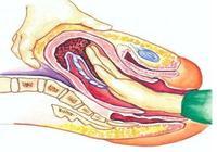 生孩子痛遠不如產科男醫生掏胎盤更痛苦的