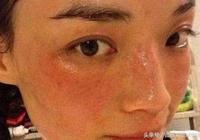 激素臉的戒斷反應是怎麼回事?