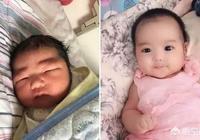 為什麼很多新生兒都是單眼皮?最後能不能變成雙眼皮?