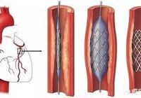 做過心臟支架五個月後應該做什麼檢查?
