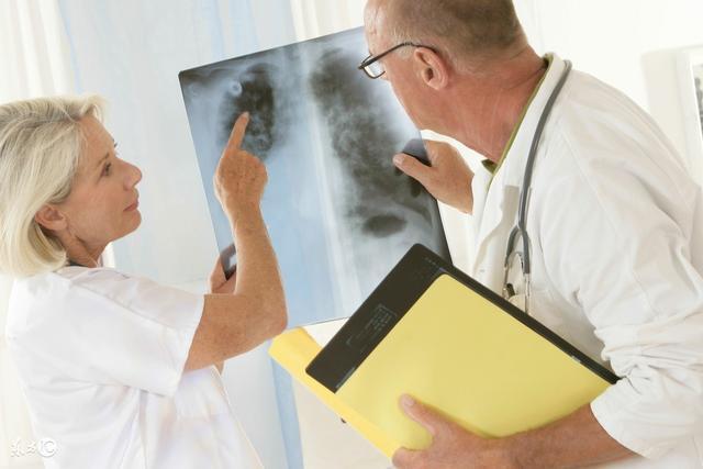 警惕肺癌的4類人群包括哪些