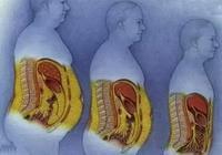 內臟脂肪超高嚴重,如何短期內減掉內臟脂肪並提高基礎代謝率?