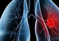 肺癌患病率高,切勿忽視五大肺癌信號