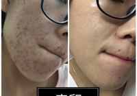 臉上有痤瘡和痘印,誰用過效果好的洗面奶或者祛痘膏推薦一下唄?
