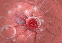 乳腺科專家:出現這6種症狀,是乳腺癌早期!學會自檢能救命