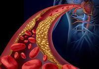 """夏季多吃這些血管的""""清道夫"""",讓血液流動更暢!"""