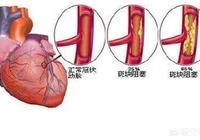 做了冠狀動脈造影后的結果是血管完全暢通,是不是說心臟功能好的意思?