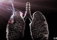 肺癌晚期能活多久,有哪些飲食禁忌