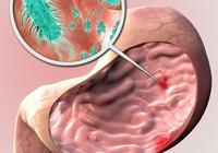 幽門螺桿菌與血糖升高有關