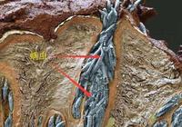 頭上出現什麼問題的時候,可以說明頭髮裡面有蟎蟲?