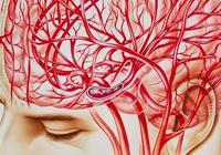腦出血來臨前有哪些特別信號?怎樣預防腦出血呢?
