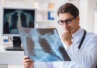 肺癌是否會傳染?肺癌的治療方法——化學治療