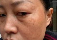"""49歲大姐臉蛋完美無瑕,藥店""""膠囊""""塗臉,7天祛斑滿臉膠原蛋白"""