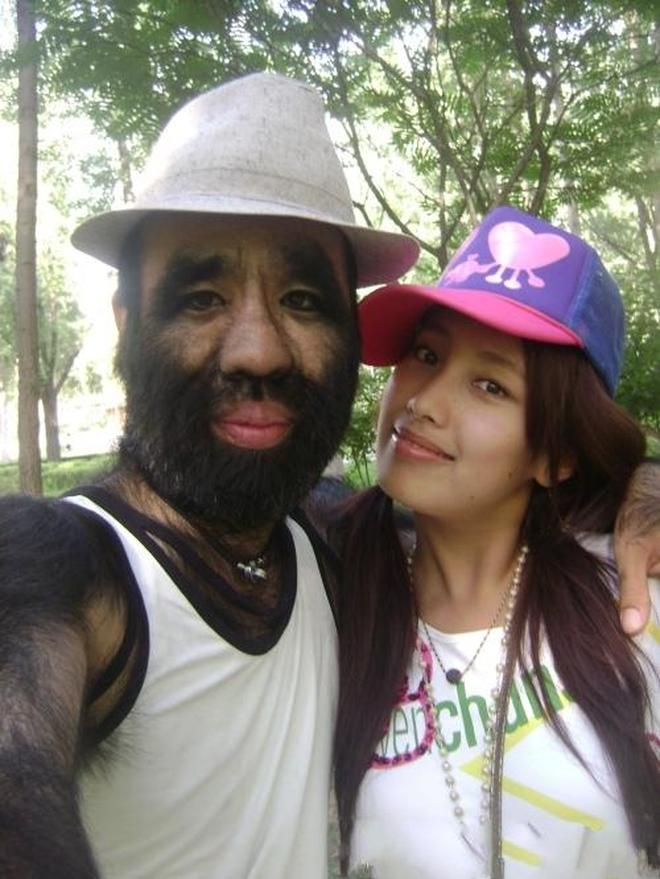 中國毛孩,從人生低谷再到人生巔峰