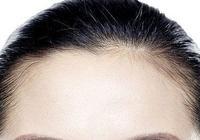 髮際線高怎麼辦,速度圍觀這幾個步驟吧