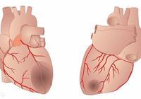 什麼是心肌梗死?