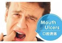 口腔潰瘍怎麼辦?