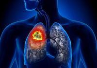 除了胸部CT,還有哪些檢查方法可以早期發現肺癌,可以抽血查嗎?