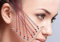 線雕面部提升可以重複做嗎?會有哪些影響?
